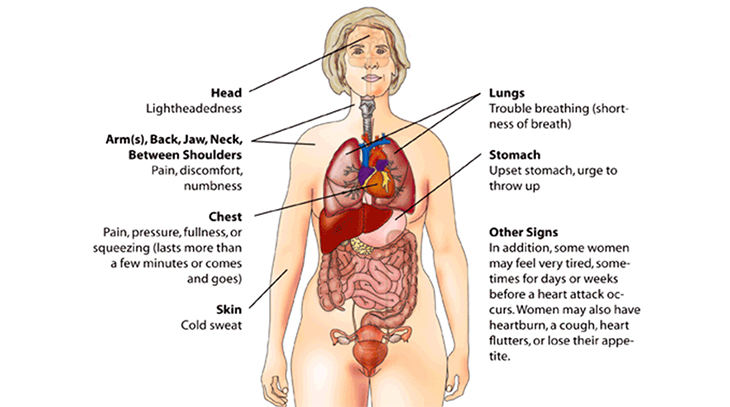 heart attack symptoms, women, lightheadedness, trouble breathing, short of breath, numbness, chest pain, discomfort, arms, back, jaw, neck, between shoulders, upset stomach, chest fullness, pressure, squeezing, cold sweat