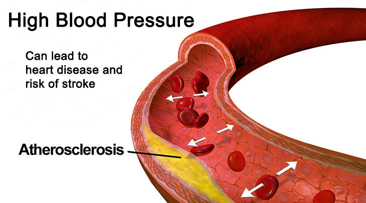 high blood pressure, heart disease, stroke, atherosclerosis, risk factors, prevention, causes