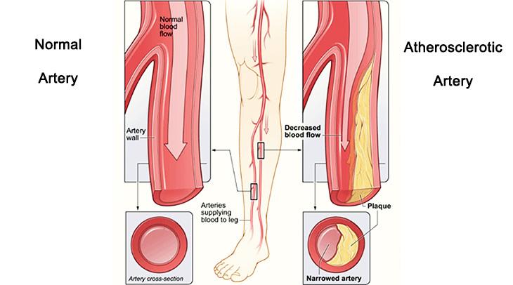 peripheral artery disease, pad, claudication, leg pain when walking, arterial disease, clogged arteries