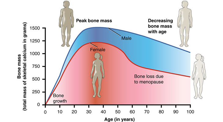 osteoporosis infographic, age and bone mass infographic, bone density, bone loss, stastics, prevlaence, fractures, broken bones