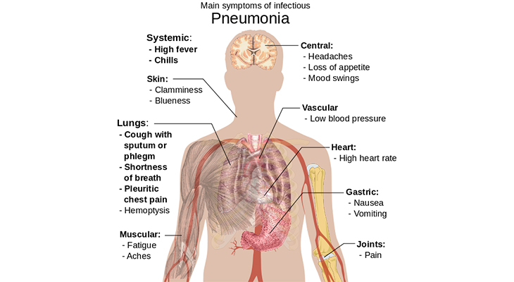 pneumonia symptoms, world pneumonia day, swelling of lungs, inflammation of lungs, infected lungs, leading cause of death, seniors, people over age 65, elderly, weakened immune system, cold or flu, pneumonia risk factors, prevention, smoking, smokers, pneumonia infographic